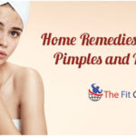 Home Remedies To Get Rid Of Pimples And Blackheads